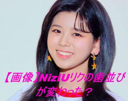 【画像】NiziUリクの歯並びが変わった?